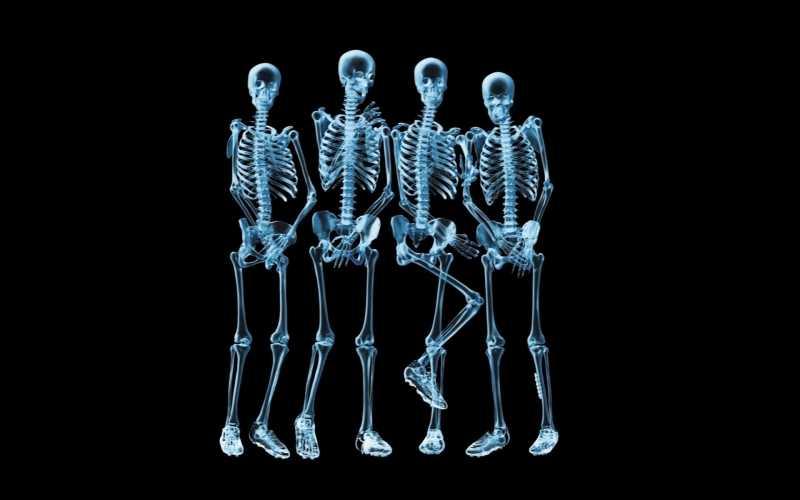 Чертовски необычные рентгеновские снимки